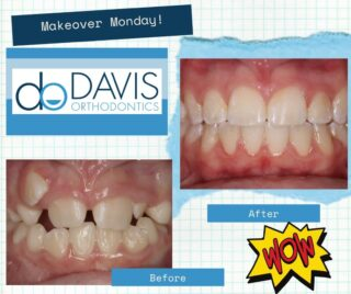 Check out this Monday Mouth Makeover to start off your week! We are accepting new patients, and we are excited to help you get the smile of your dreams. Call us for complimentary consultation at 803-739-1600 or check out our virtual consultation here: https://www.dobraces.com/online-dental-consultation #DObraces #MondayMakeover #SmileOn #SmileMakeover